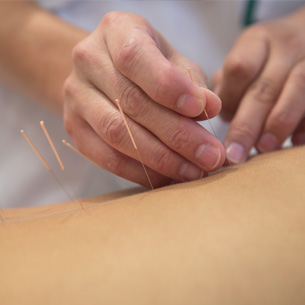 L acupuncture